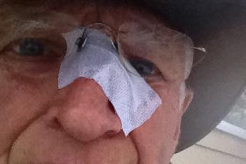 adverse nose